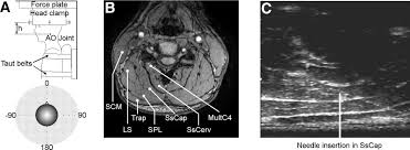 neck muscle anatomy ultrasound articles journal of neurophysiology