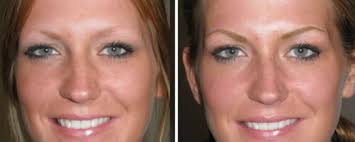 eyebrow tattoo cost aftercare healing removal near me gone