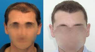 hair transplant costs in the philippines hair transplant cost hairsite com