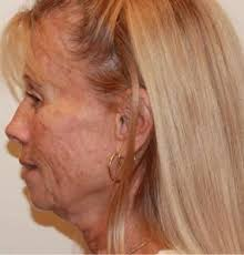 hairstyles for women with sagging necks 17 best smooth out wrinkly tortoise neck with face aerobics images
