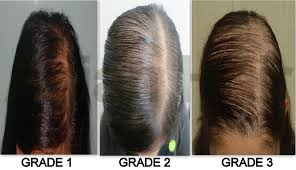 women thin hair on top women s hairstyles thinning hair top new super short hairstyles