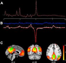 neurochemical modulation in posteromedial default mode network