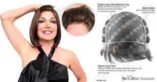 wigs for thinning hair that are not hot to wear her hair loss help
