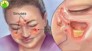 can sinus infection cause dizziness light headed kills sinus infection in 20 seconds with this simple method of the