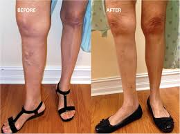how much does spider vein and varicose vein treatment in miami cost