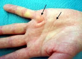 knoten handinnenfläche operation dupuytren schen krankheit