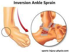 High Ankle Sprain Anatomy Ankle Sprains An Overview Hss Edu Hospital For Special