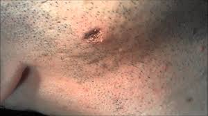 ingrown hair on chin infection ingrown hair removal gone wrong dermatologist blows hole in face