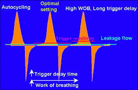 Types Of Ventilators Pressure Support Ventilation And Other Approaches To Overcome