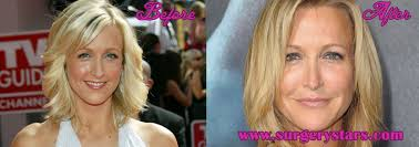 lara spencer plastic surgery before and after pictures