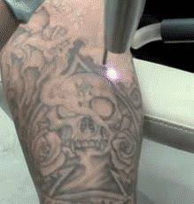 72 best laser tattoo removal virginia images on pinterest laser