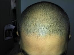 too late for minox propecia baldtruthtalk com