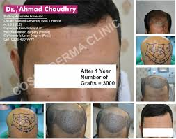 hairstyle prp therapy hair loss stem cell hair restoration