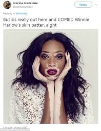 Makeup Schools In New Orleans Golgiknowsbest Under Fire For Vitiligo Like Make Up Look Daily