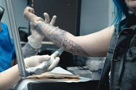 people at a tattoo removal clinic tell us why they u0027re getting rid
