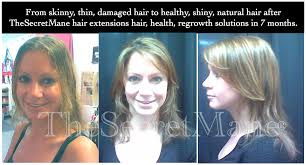 Tap In Hair Extensions by Trichotillomania Salon Treatment Programs