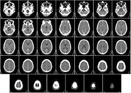 Ct Anatomy Of Brain Ppt Ct Scan Wikipedia
