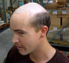 bald on top of head men hairstyles hairstyles for thin hair