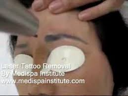 laser tattoo removal eyebrow youtube