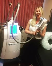 coolsculpting noninvasive fat reduction queen anne