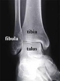 Ankle Ligament Tear Mri Ankle Sprains Dr Chris Chiodo