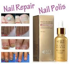 nail problems reviews online shopping nail problems reviews on