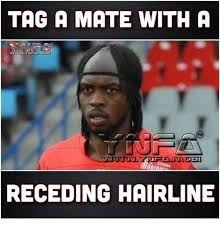 Receding Hairline Meme - tag a mate with a receding hairline hairline meme on me me