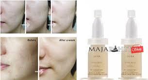 Serum Wajah Jafra efek sing serum jafra apabila terlalu sering digunakan kulit jadi