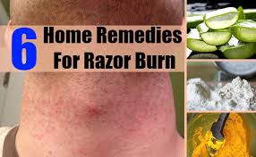 Home Remedies For Small Burns - how to get rid of razor bumps severe razor bumps treatment