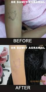laser tattoo removal in mumbai permanent tattoo removal clinic