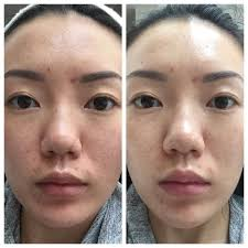 skinclinical reverse light therapy anti aging device reviews led light therapy for anti aging inflammatory skin issues