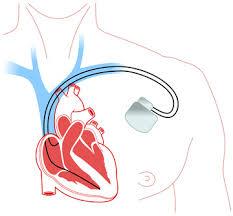 pacemaker chambre b fonctionnement du pacemaker