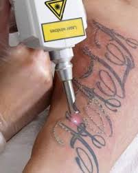 china portable e light ipl rf nd yag tattoo removal laser