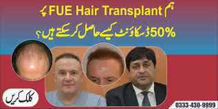 fue hair transplant clinic baldness solution in pakistan