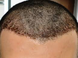 prescreened hair transplant physicians should i remove scabs after hair transplant surgery regrow hair q a