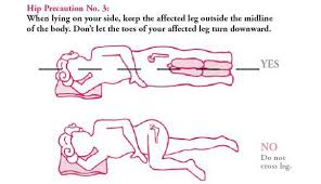 Lower Back Stretches In Bed Hip Precautions After Hip Surgery Learn To Prevent Dislocation