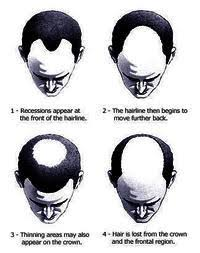different types of receding hairlines does a receding hairline mean baldness things you didn t know