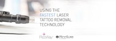 laser tattoo removal london as seen on bbc london pulse light