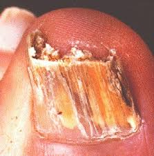 fungal nail infections onychomycosis om information patient