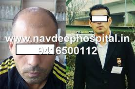hair transplant in the philppines cost fue hair transplant cost for philippines navdeep hospital