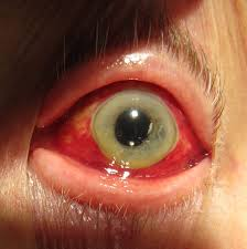 What Causes Blindness In Humans Red Eye Medicine Wikipedia