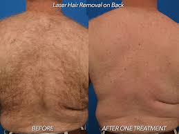 hair removal u2014 plastic surgery mobile alabama plastic surgeon