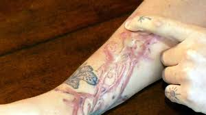 montreal woman claims tattoo removal treatment resulted in 2nd