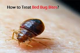 remedies for bed bug bites to treat bed bug bites