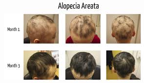 Azelaic Acid Hair Loss Alopecia Areata All You Need To Know The Belgravia Centre