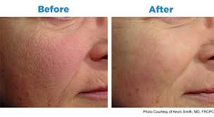 Light Spots On Face Aesthetic Medicine Detweiler Family Medicine U0026 Associates