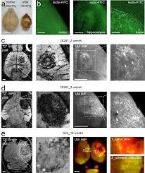 yamaguchi martin architects correlated magnetic resonance imaging and ultramicroscopy mr um