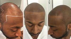 scalp micropigmentation in chicago u2022 1 hair loss solution