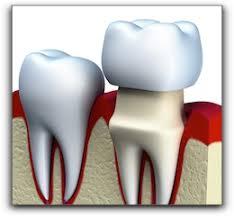 Comfort Dental Lafayette Co Cost Of A Dental Crown In Lafayette Gordon West Dds Aesthetic