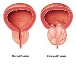 cialis treatment for enlarged prostate best price